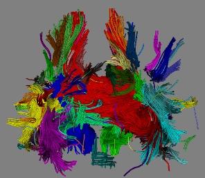 standardowa metoda wizualizacji wlokien bialej materii mozgu
